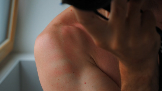 Hoe schadelijk is een zonnebrand